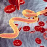 паразиты в организме человека симптомы